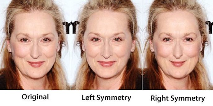 assymetrical facial features